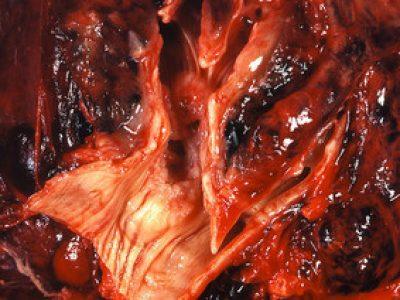 angiogeneza nowotworowa