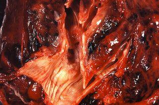 Angiogeneza nowotworowa – czym jest?