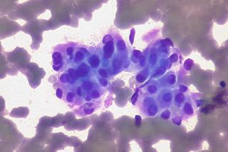 komórki nowotworowe - opis
