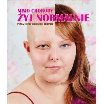 JUSTYNA PUCHALSKA: MIMO CHOROBY ŻYJĘ NORMALNIE