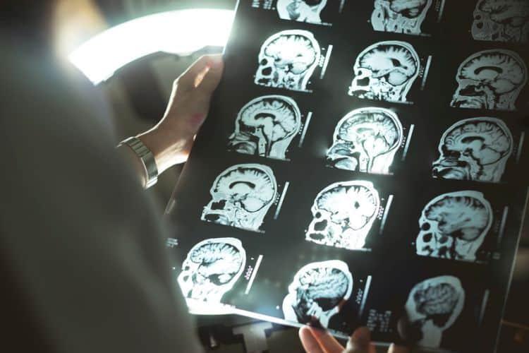 objawy guza mózgu