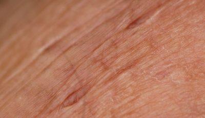pielęgnacja skóry podczas radioterapii