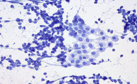 rak niedrobnokomórkowy płuca