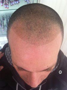 mikropigmentacja włosów przed zabiegiem mężczyzna