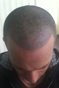 mikropigmentacja włosów po zabiegu mężczyzna