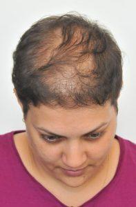 mikropigmentacja włosów przed zabiegiem kobieta