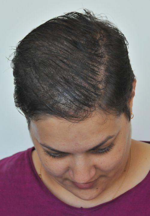 mikropigmentacja włosów 4