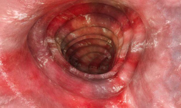 Rak jelita cienkiego – objawy, przyczyny i leczenie