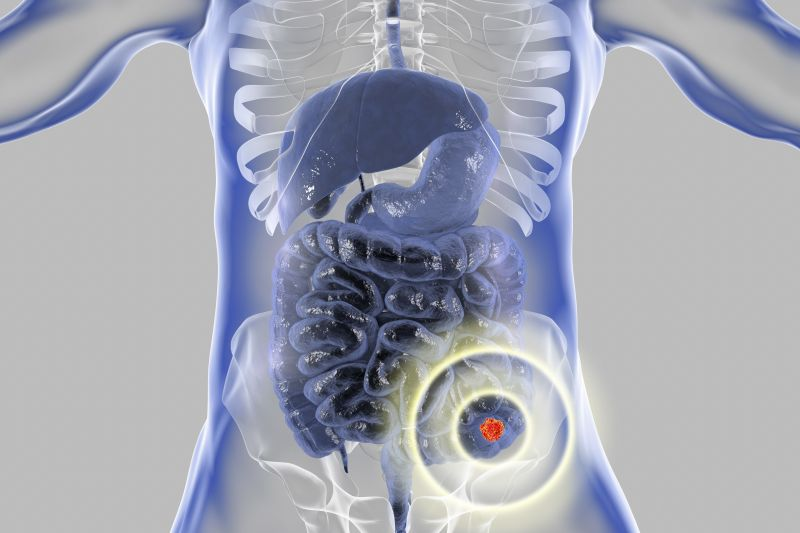 rak jelita cienkiego objawy