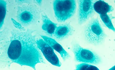 rak prostaty, gruczołu krokowego, objawy