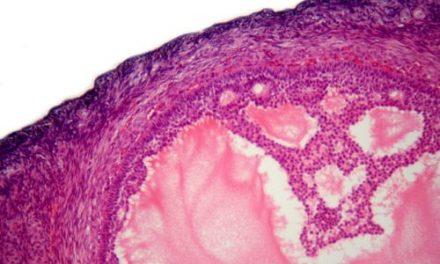 Dziedziczny rak jajnika – predyspozycje genetyczne do zachorowania