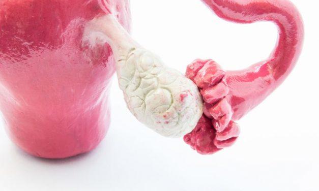 Diagnostyka molekularna i genetyka raka jajnika