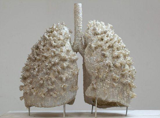 Jak zadbać o zdrowe płuca? Czynniki ryzyka i screening w raku płuca