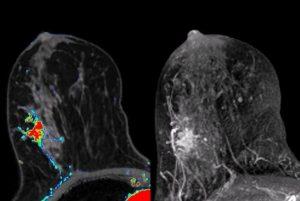 rezonans 3 teslowy raka piersi, Otwock