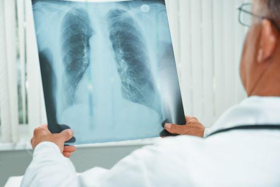 leczenie personalizowane raka płuca, DOS47