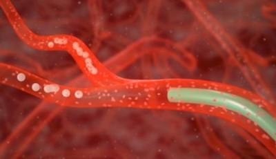 chemoembolizacja raka jelita i wątroby Szczecin