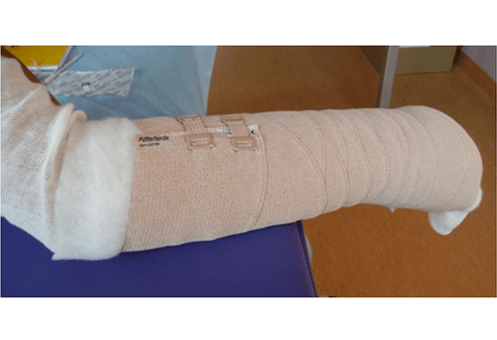 kompleksowa terapia przeciwobrzękowa