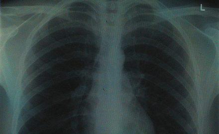 raport obraz raka płuca w Polsce, health quest