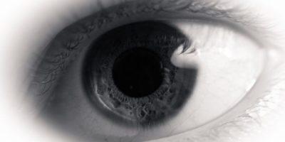 czerniak oka, gałki ocznej