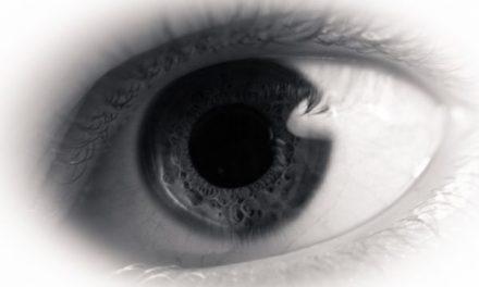 Czerniak gałki ocznej (czerniak oka) – objawy i leczenie
