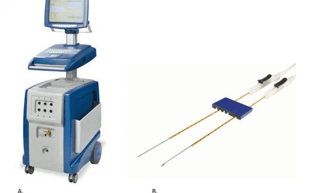 Nanoknife: elektryczny nano-nóż do leczenia raka