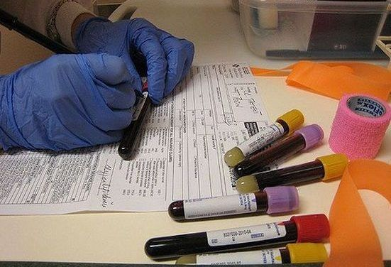 Jak poprawić wyniki kwi podczas leczenia onkologicznego?