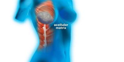 Implanty, macierz ADM