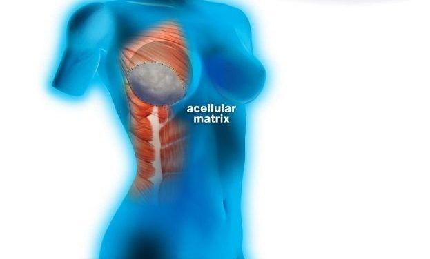 ADM (acellular dermal matrix) – macierz bezkomórkowa dla pacjentek, u których planowany jest zabieg rekonstrukcji piersi