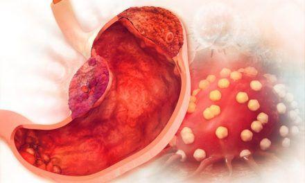 Rak żołądka – objawy i diagnostyka