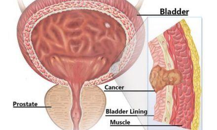 Rak pęcherza moczowego – objawy, wykrywanie i genetyka