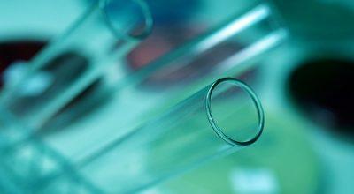Test ConfirmMDx - płynna biopsja prostatyi