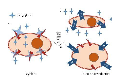 Krioablacja guzów nowotworowych – wymrażanie raka