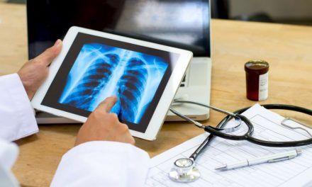 Poznaj wczesne objawy raka płuc
