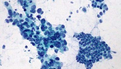 rak trzustki leczenie