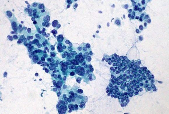 Leczenie raka trzustki – aktualne wytyczne