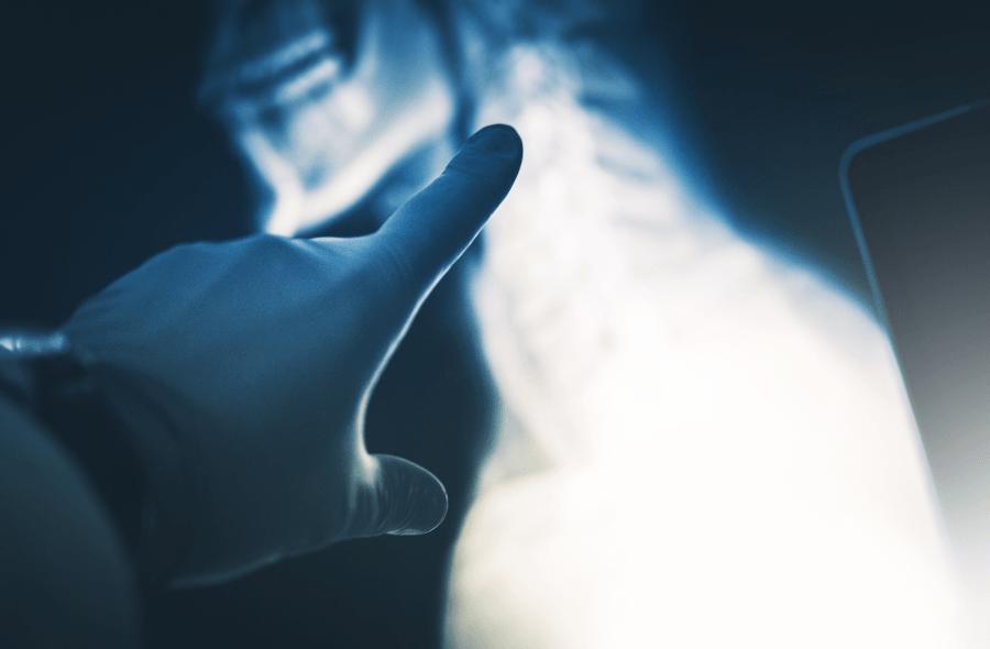 Wczesne objawy raka piersi (sutka)