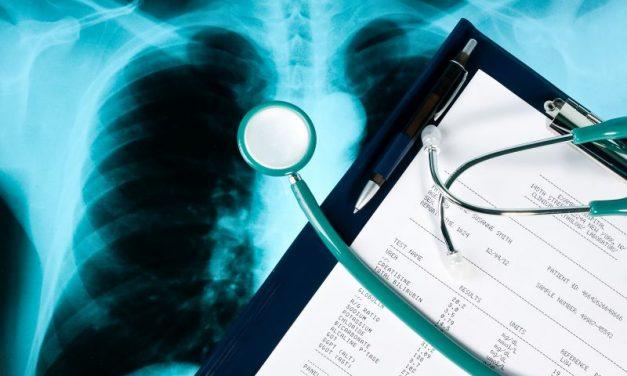 Diagnostyka raka płuc – wczesne wykrywanie