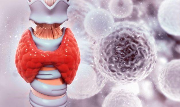 Rak tarczycy – objawy, diagnostyka i leczenie nowotworu