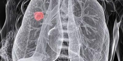 refundacja w raku pluca