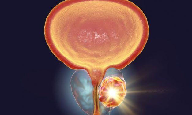 Zabieg HIFU – ultradźwięki w leczeniu raka prostaty