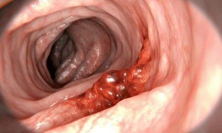 Co to jest nowotwór złośliwy?