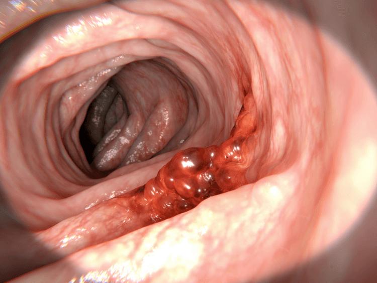 nowotwór złośliwy rak