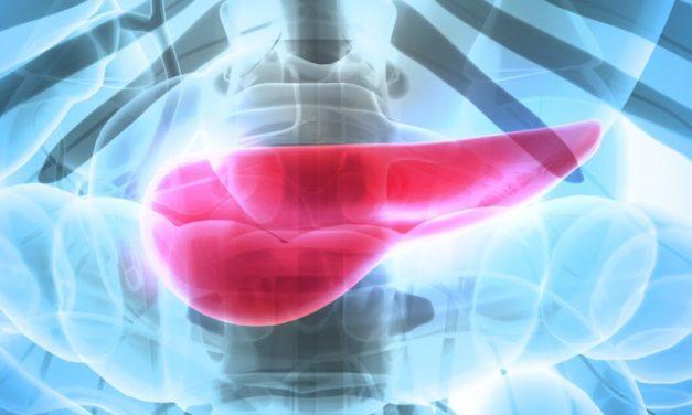 Pierwsze objawy raka trzustki