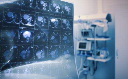 opieka onkologiczna w Polsce