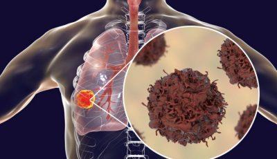 leczenie antyangiogenne raka, nintedanib