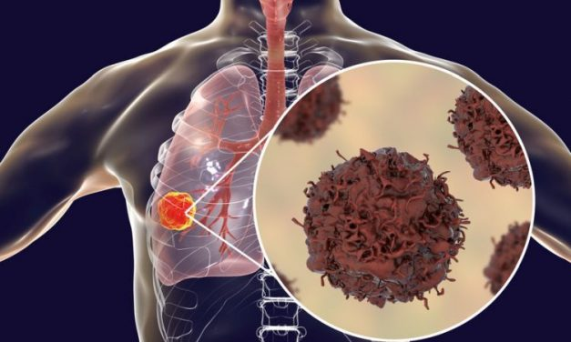 Raka płuca można leczyć. Potrzebny dostęp do pełnego wachlarza leków.