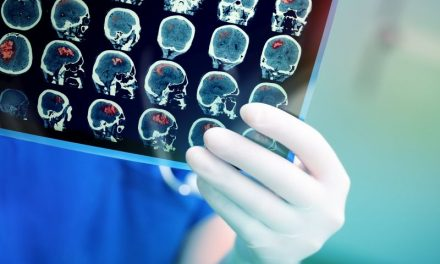 Przyczyny i rodzaje guzów mózgu