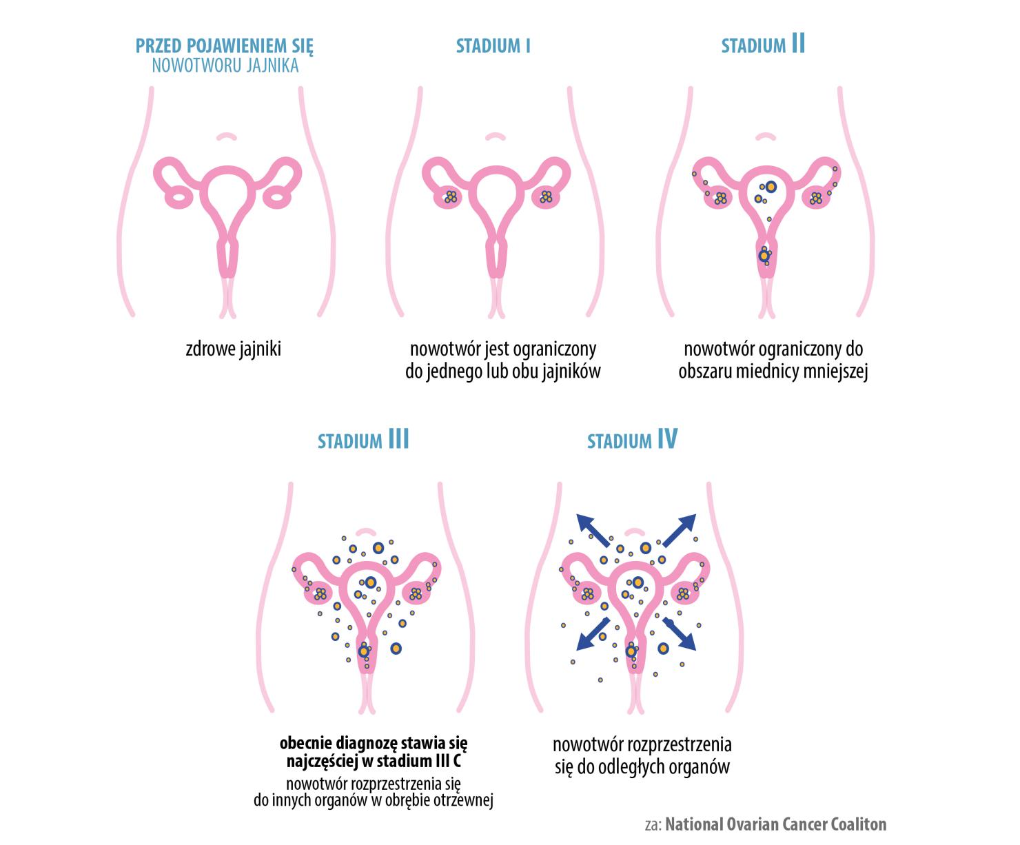 rak jajnika stadia rozwoju