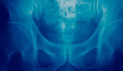 rak kości, przerzuty objawy