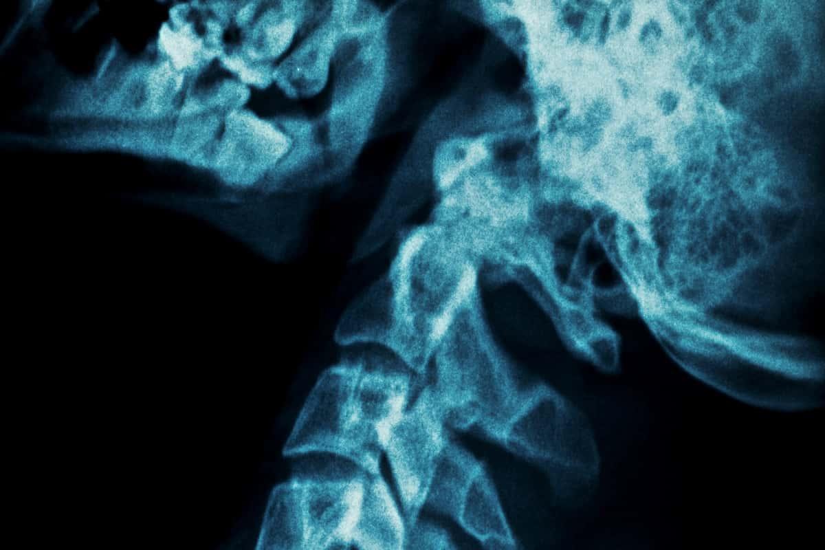 rak kości